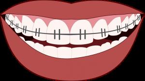 Foster City orthodontist